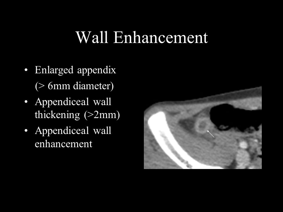 Wall Enhancement Enlarged appendix (> 6mm diameter) Appendiceal wall thickening (>2mm) Appendiceal wall enhancement