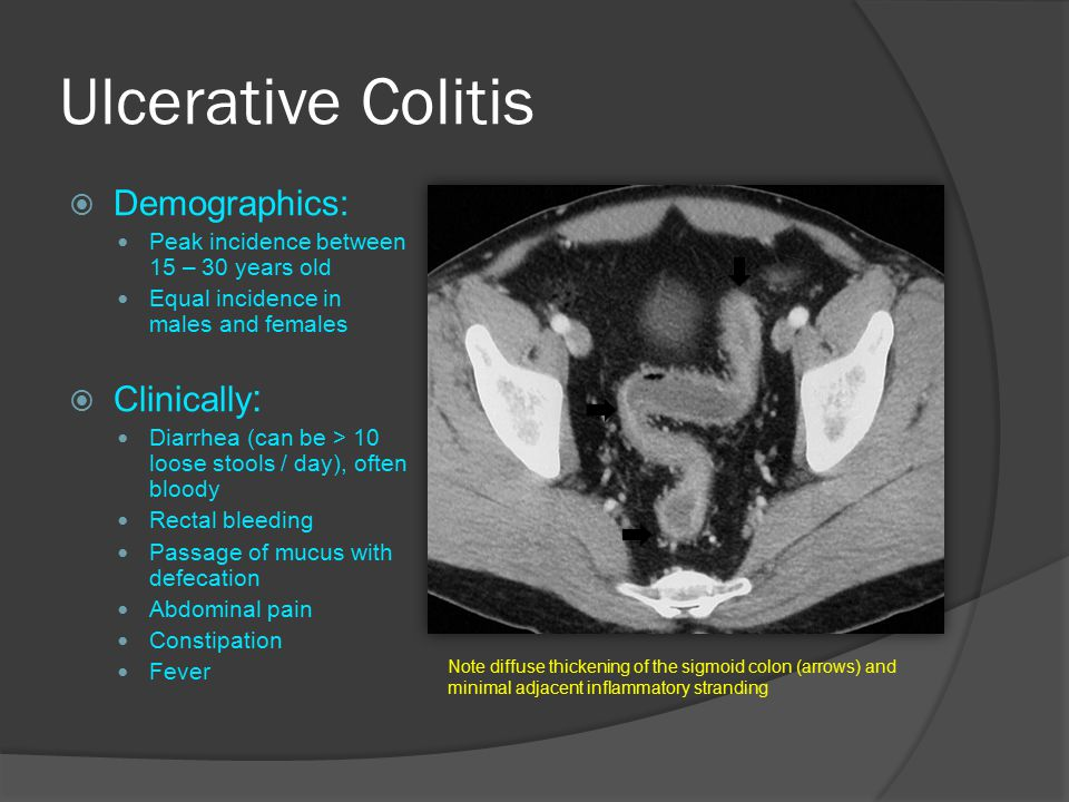 Ulcerative Colitis  Demographics: Peak incidence between 15 – 30 years old Equal incidence in males and females  Clinically : Diarrhea (can be > 10