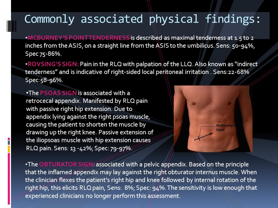 MCBURNEY'S POINT TENDERNESS is described as maximal tenderness at 1.5 to 2 inches from the ASIS, on a straight line from the ASIS to the umbilicus. Se