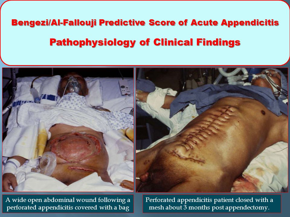 Bengezi/Al-Fallouji Predictive Score of Acute Appendicitis Pathophysiology of Clinical Findings Perforated appendicitis patient closed with a mesh about 3 months post appendectomy.