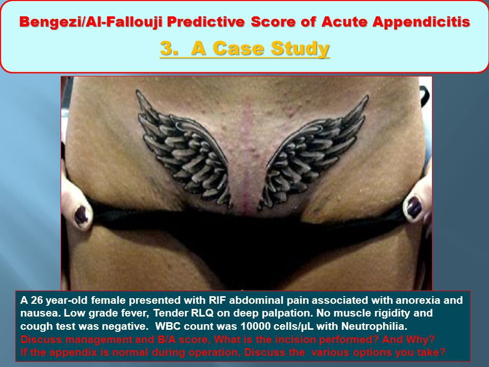 Bengezi/Al-Fallouji Predictive Score of Acute Appendicitis 3. A Case Study A 26 year-old female presented with RIF abdominal pain associated with anor