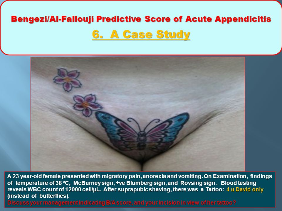 Bengezi/Al-Fallouji Predictive Score of Acute Appendicitis 6. A Case Study A 23 year-old female presented with migratory pain, anorexia and vomiting.