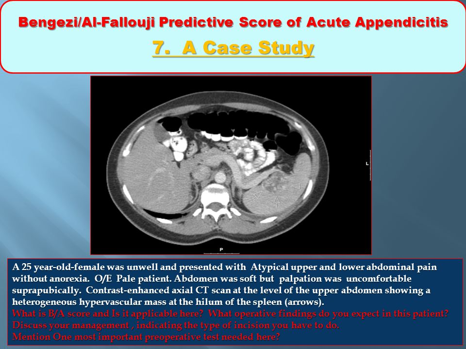 Bengezi/Al-Fallouji Predictive Score of Acute Appendicitis 7. A Case Study A 25 year-old-female was unwell and presented with Atypical upper and lower