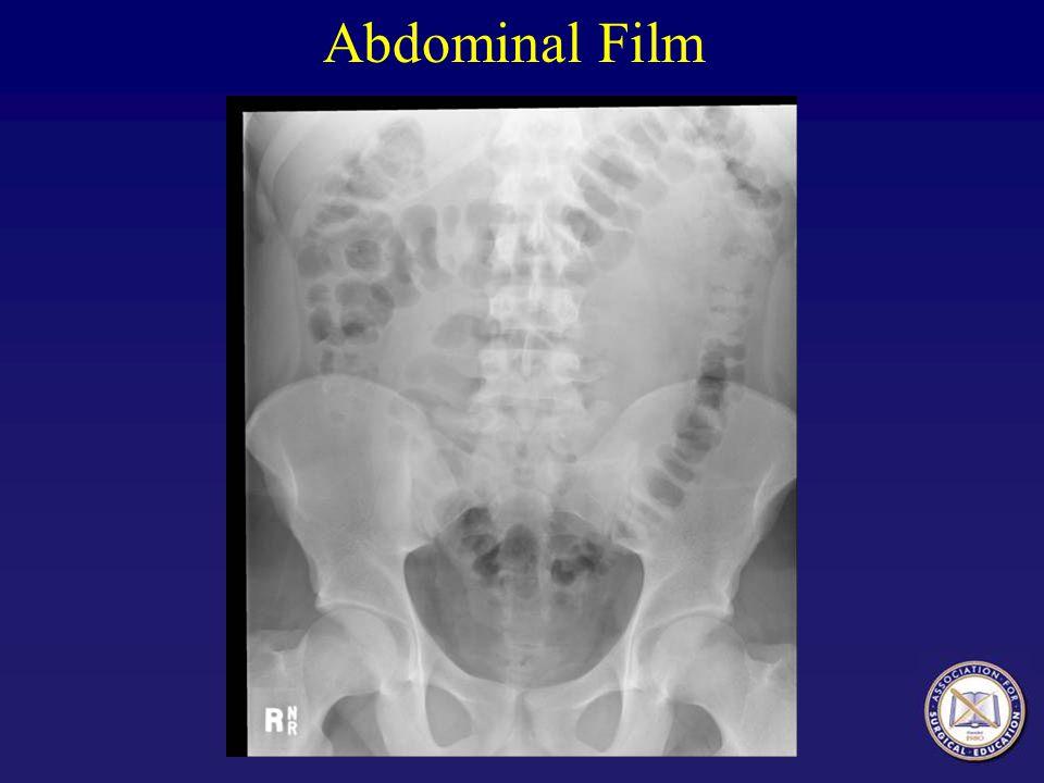 Abdominal Film