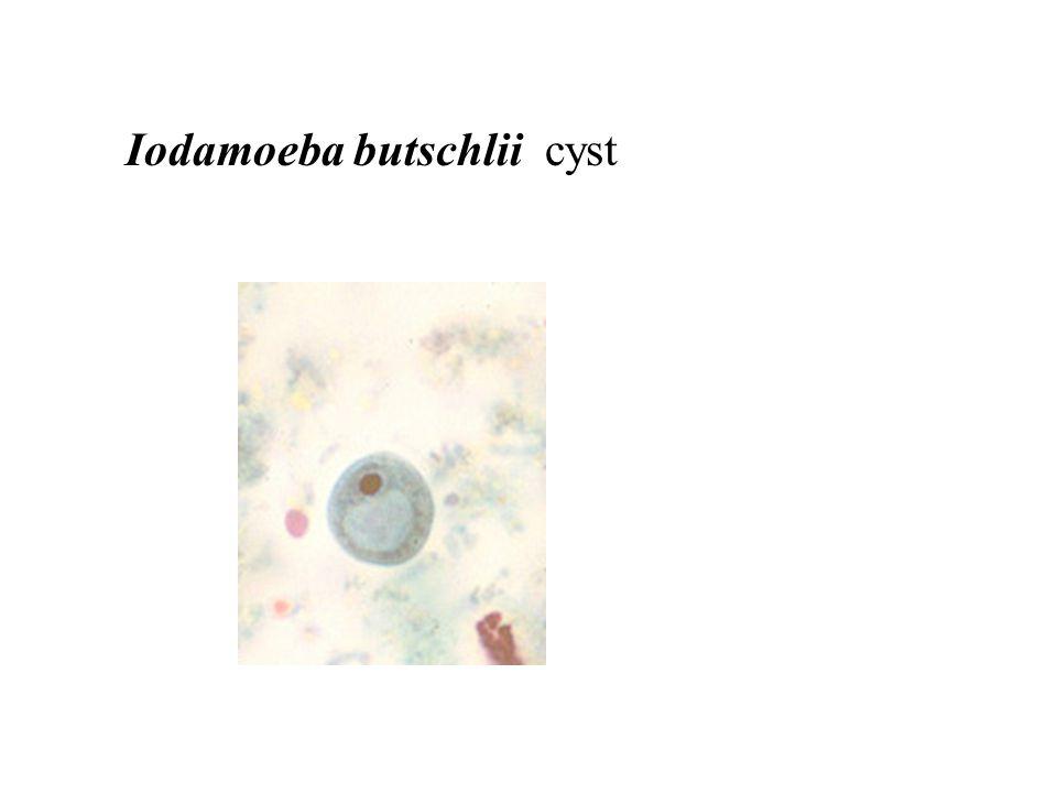 Iodamoeba butschlii cyst