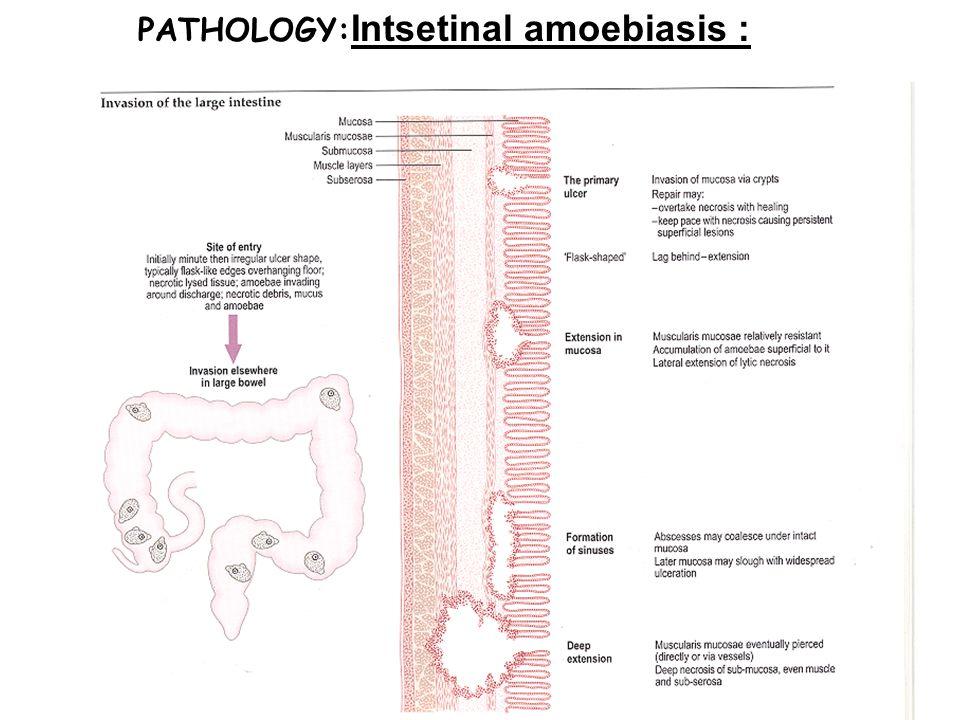 PATHOLOGY: Intsetinal amoebiasis :