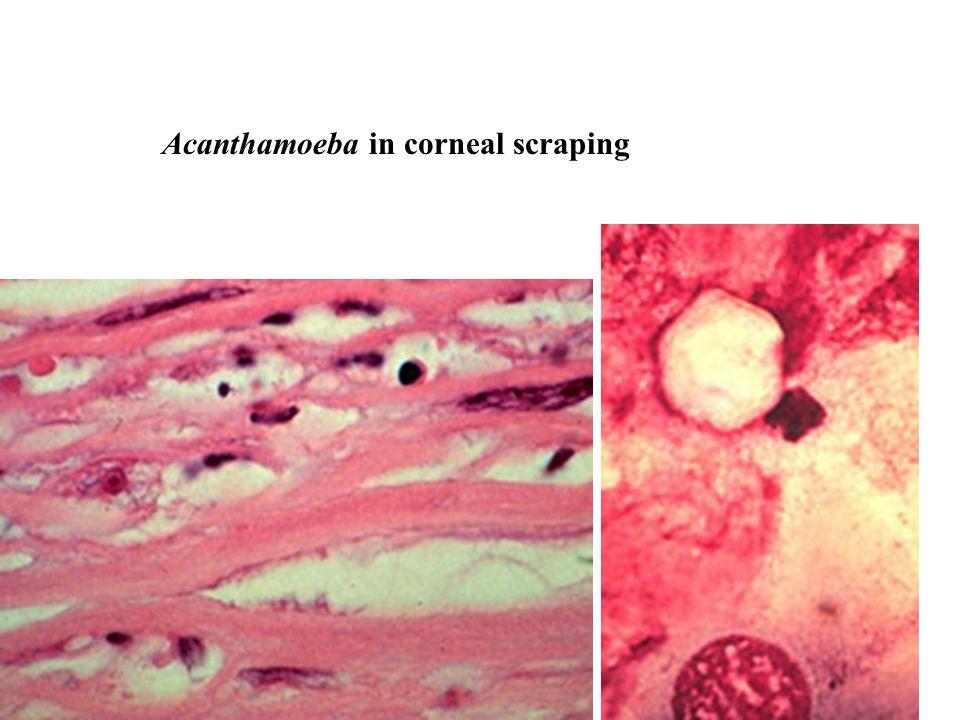 Acanthamoeba in corneal scraping