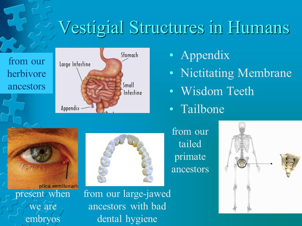 Vestigial Structures in Humans Appendix Nictitating Membrane Wisdom Teeth Tailbone from our large-jawed ancestors with bad dental hygiene from our herbivore ancestors from our tailed primate ancestors present when we are embryos