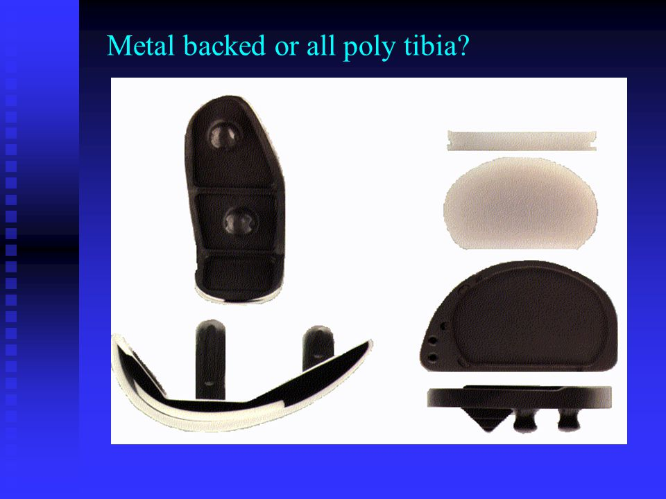 Metal backed or all poly tibia?