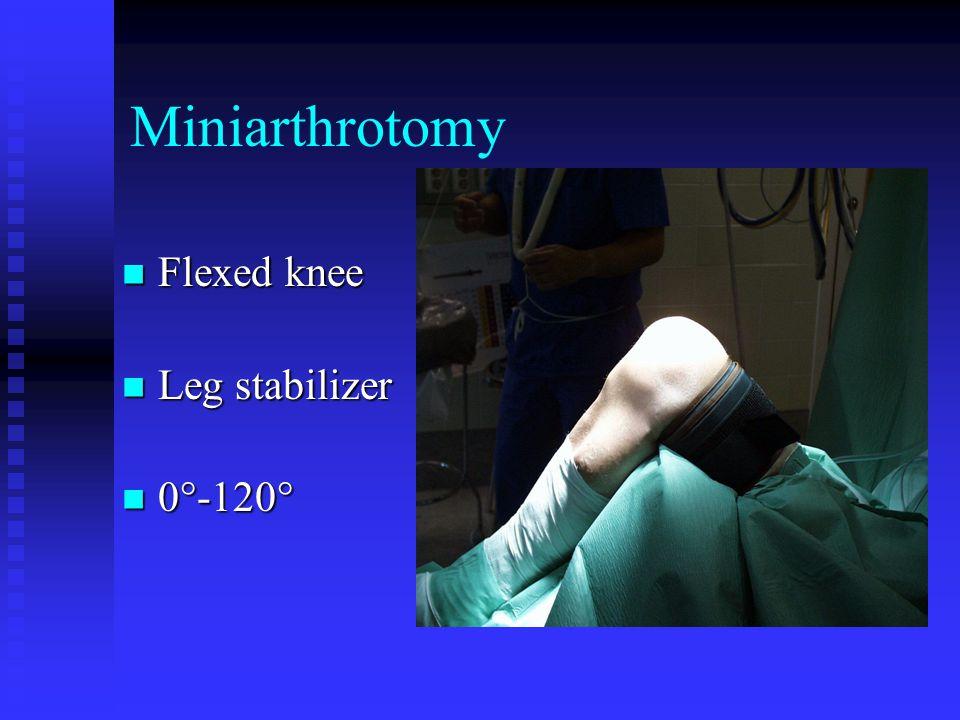 Miniarthrotomy Flexed knee Flexed knee Leg stabilizer Leg stabilizer 0°-120° 0°-120°
