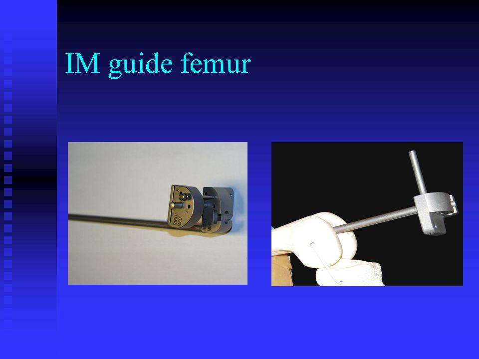 IM guide femur