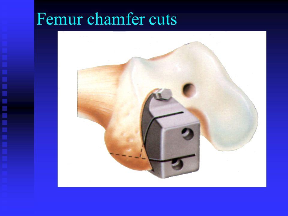 Femur chamfer cuts