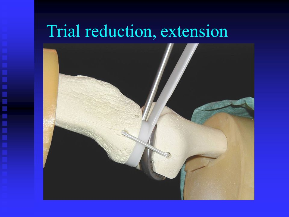 Trial reduction, extension