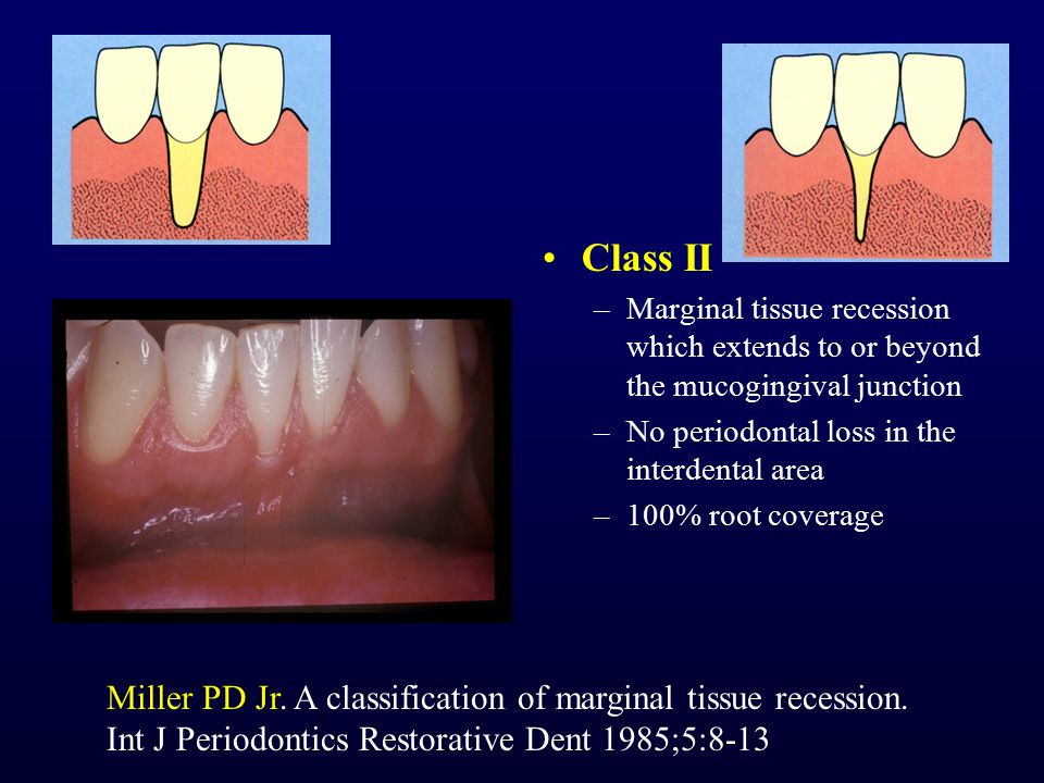 Class II –Marginal tissue recession which extends to or beyond the mucogingival junction –No periodontal loss in the interdental area –100% root cover