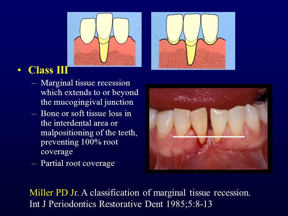 Class III –Marginal tissue recession which extends to or beyond the mucogingival junction –Bone or soft tissue loss in the interdental area or malposi
