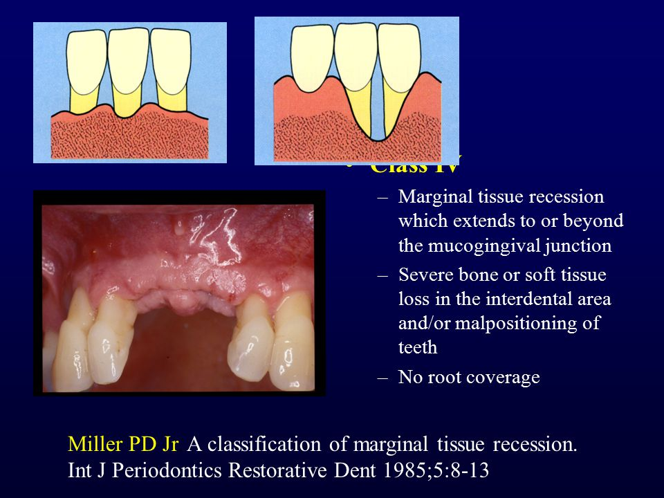 Class IV –Marginal tissue recession which extends to or beyond the mucogingival junction –Severe bone or soft tissue loss in the interdental area and/