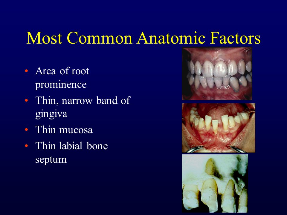 Most Common Anatomic Factors Area of root prominence Thin, narrow band of gingiva Thin mucosa Thin labial bone septum
