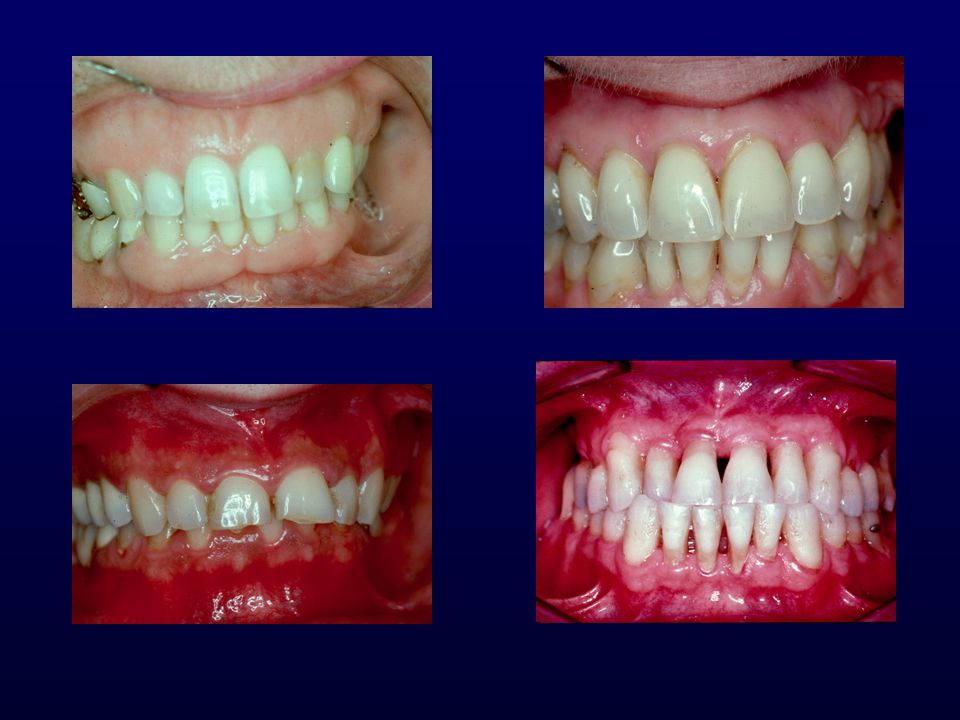 How much gingiva is required 1mm may create no problems in patients with good oral hygiene