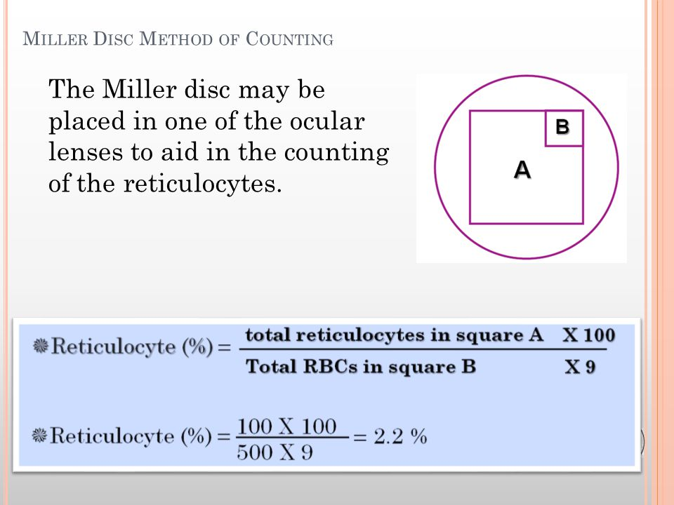 The Miller disc may be placed in one of the ocular lenses to aid in the counting of the reticulocytes.