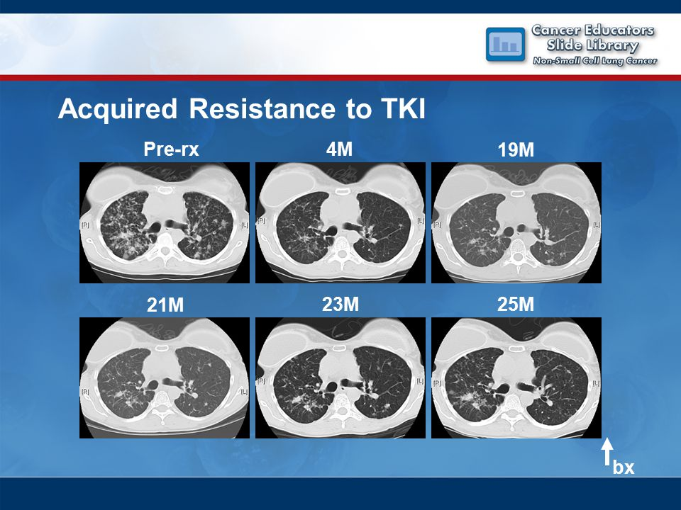 21M 23M25M Pre-rx4M 19M bx Acquired Resistance to TKI