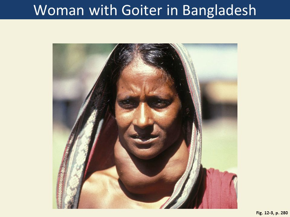 Woman with Goiter in Bangladesh Fig. 12-3, p. 280