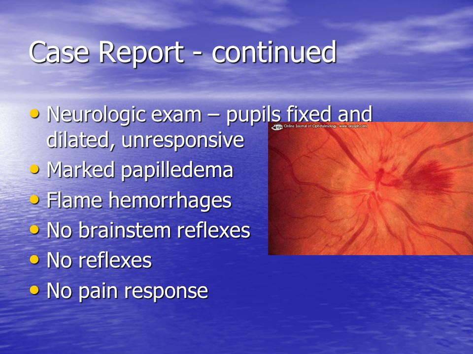 Case Report - continued Neurologic exam – pupils fixed and dilated, unresponsive Neurologic exam – pupils fixed and dilated, unresponsive Marked papilledema Marked papilledema Flame hemorrhages Flame hemorrhages No brainstem reflexes No brainstem reflexes No reflexes No reflexes No pain response No pain response