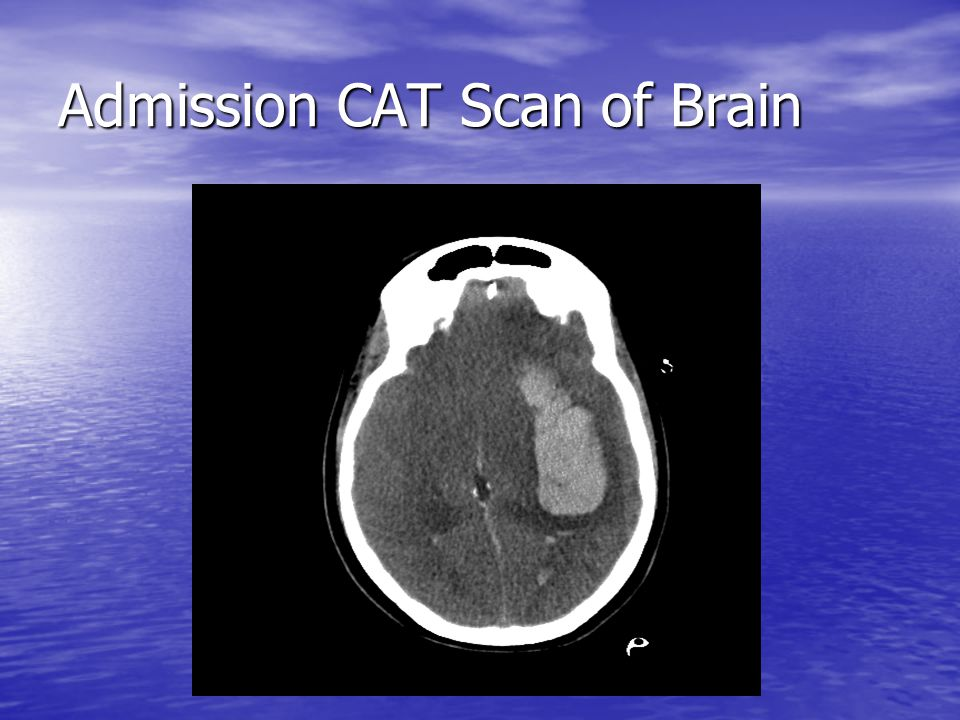 Admission CAT Scan of Brain