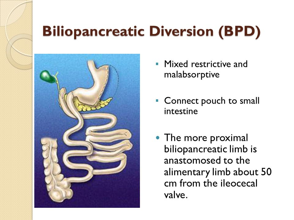 Biliopancreatic Diversion (BPD)  Mixed restrictive and malabsorptive  Connect pouch to small intestine The more proximal biliopancreatic limb is anastomosed to the alimentary limb about 50 cm from the ileocecal valve.