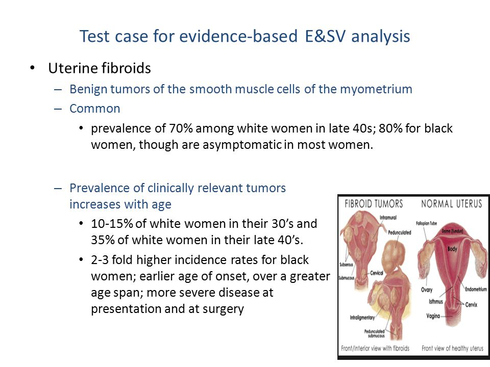 Test case for evidence-based E&SV analysis Uterine fibroids – Benign tumors of the smooth muscle cells of the myometrium – Common prevalence of 70% among white women in late 40s; 80% for black women, though are asymptomatic in most women.