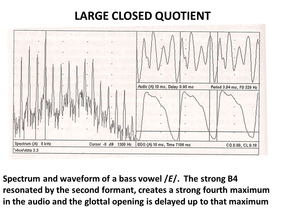 LARGE CLOSED QUOTIENT Spectrum and waveform of a bass vowel /E/. The strong B4 resonated by the second formant, creates a strong fourth maximum in the