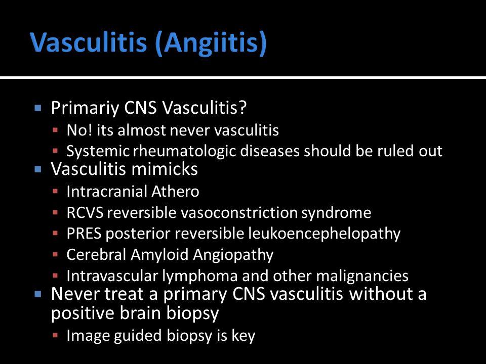  Primariy CNS Vasculitis.  No.