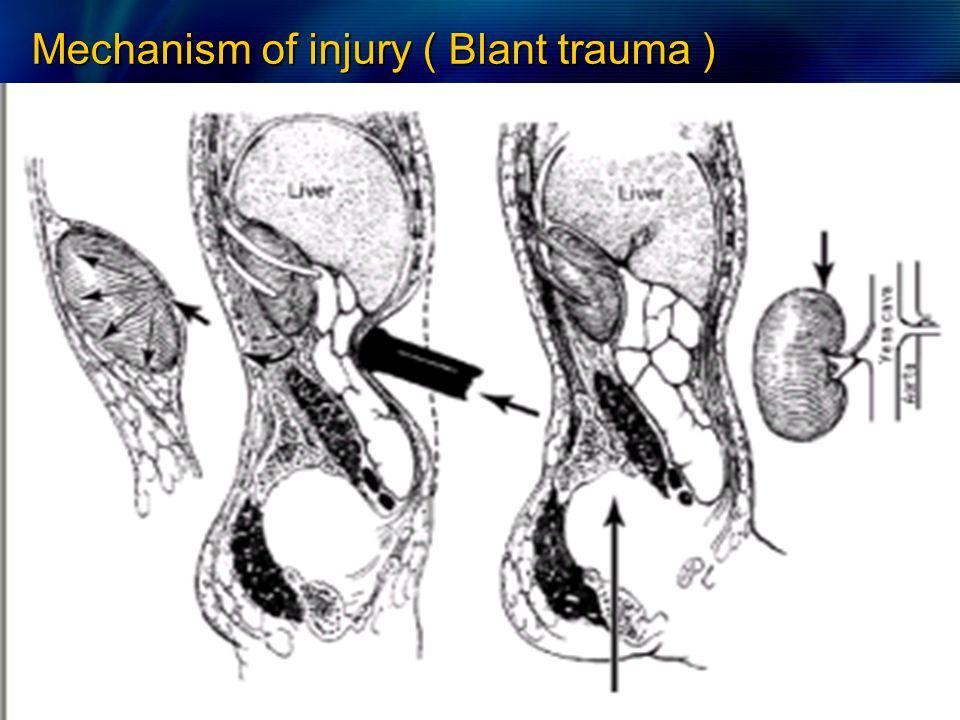 Organ Injury Severity Scale
