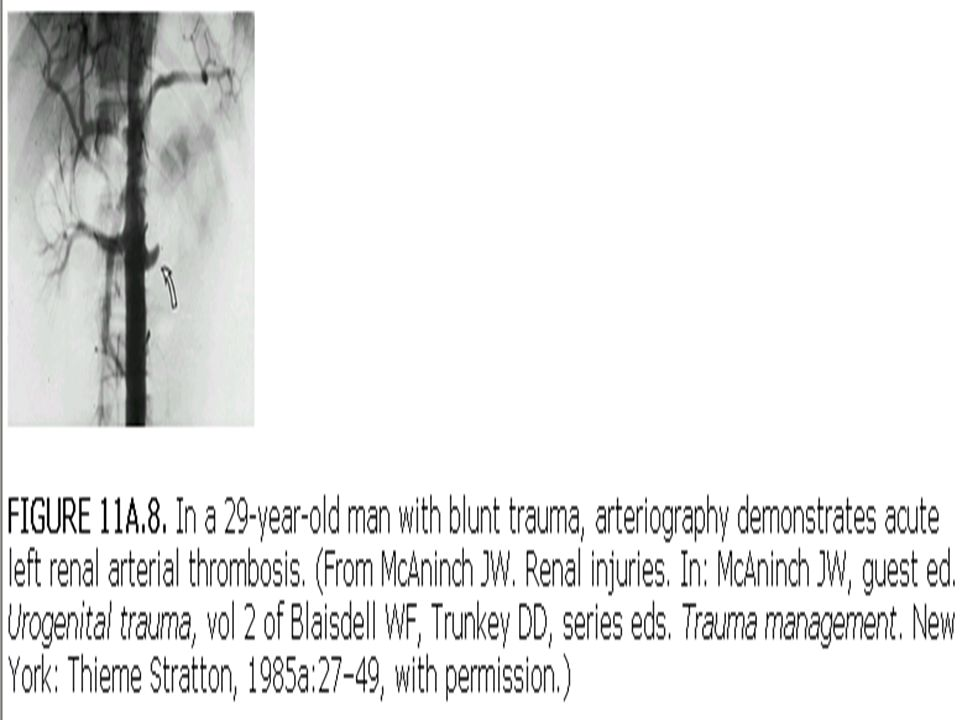 Grade IV Laceration –Renal cortex –Renal medulla –Collecting system Vascular –Main renal artery/vein injury with contained hemorrage.