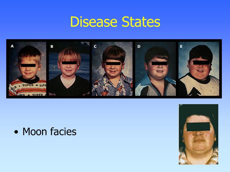 Disease States Moon facies