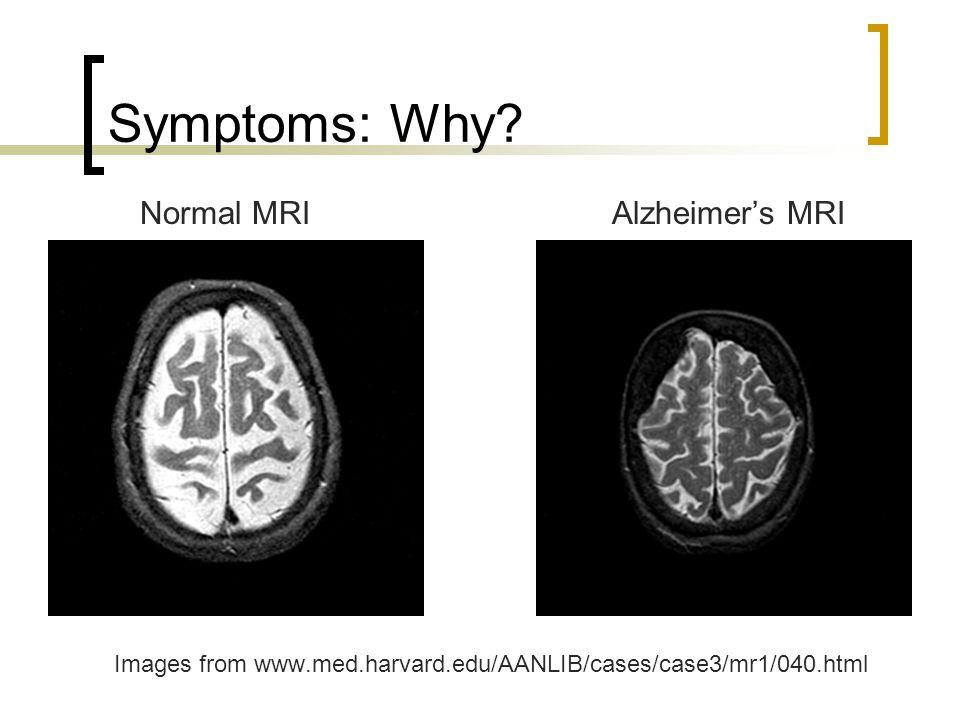Symptoms: Why? Normal MRI Alzheimer's MRI Images from www.med.harvard.edu/AANLIB/cases/case3/mr1/040.html