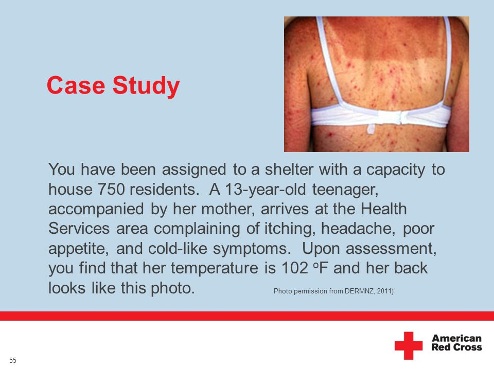 Case Study You have been assigned to a shelter with a capacity to house 750 residents.