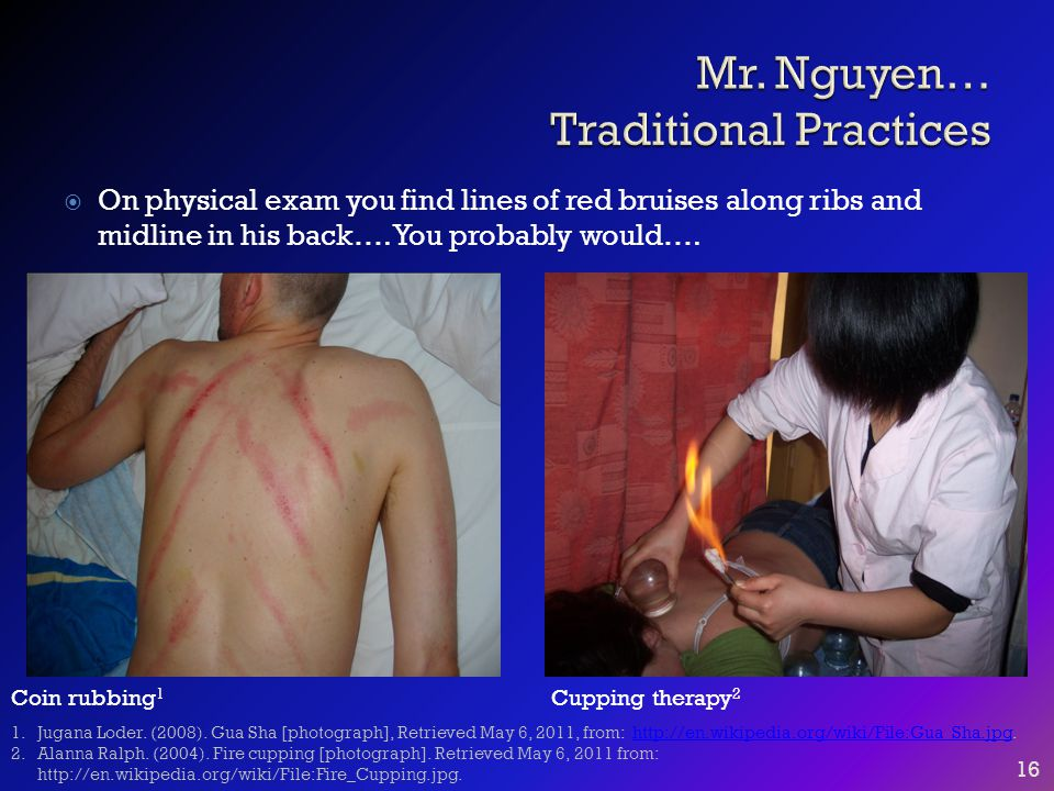  On physical exam you find lines of red bruises along ribs and midline in his back…. You probably would…. 16 Coin rubbing 1 Cupping therapy 2 1.Jugan