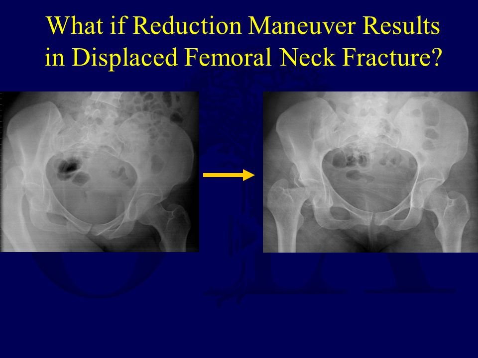 What if Reduction Maneuver Results in Displaced Femoral Neck Fracture?