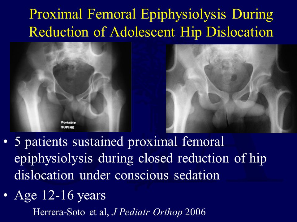 Proximal Femoral Epiphysiolysis During Reduction of Adolescent Hip Dislocation 5 patients sustained proximal femoral epiphysiolysis during closed redu
