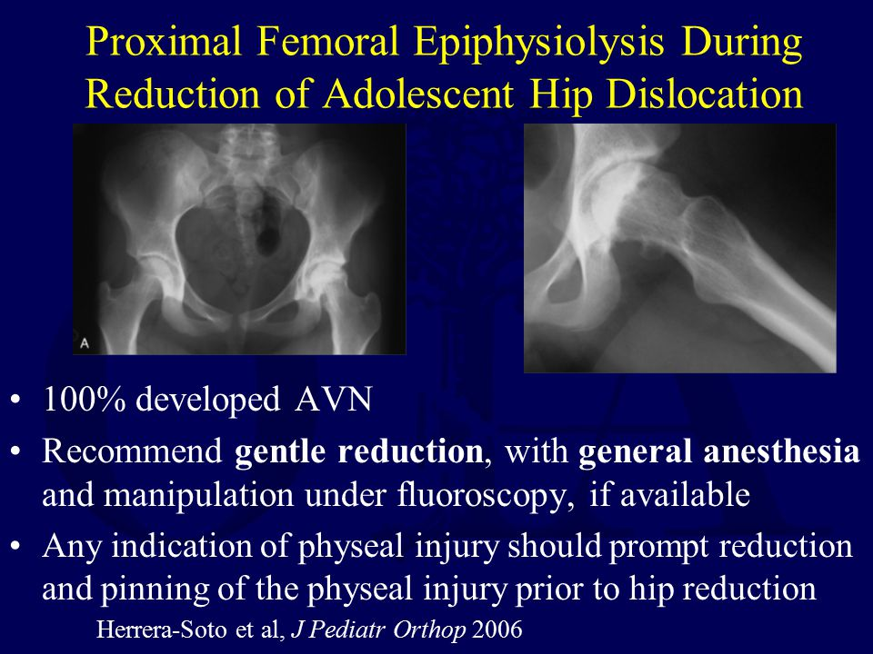 Proximal Femoral Epiphysiolysis During Reduction of Adolescent Hip Dislocation 100% developed AVN Recommend gentle reduction, with general anesthesia