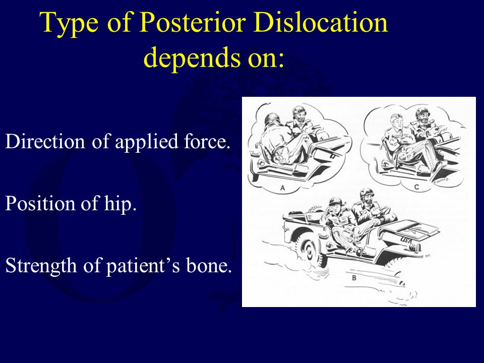 Type of Posterior Dislocation depends on: Direction of applied force. Position of hip. Strength of patient's bone.