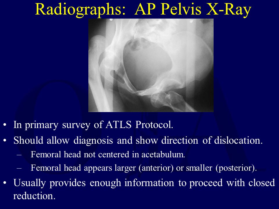 Radiographs: AP Pelvis X-Ray In primary survey of ATLS Protocol. Should allow diagnosis and show direction of dislocation. –Femoral head not centered