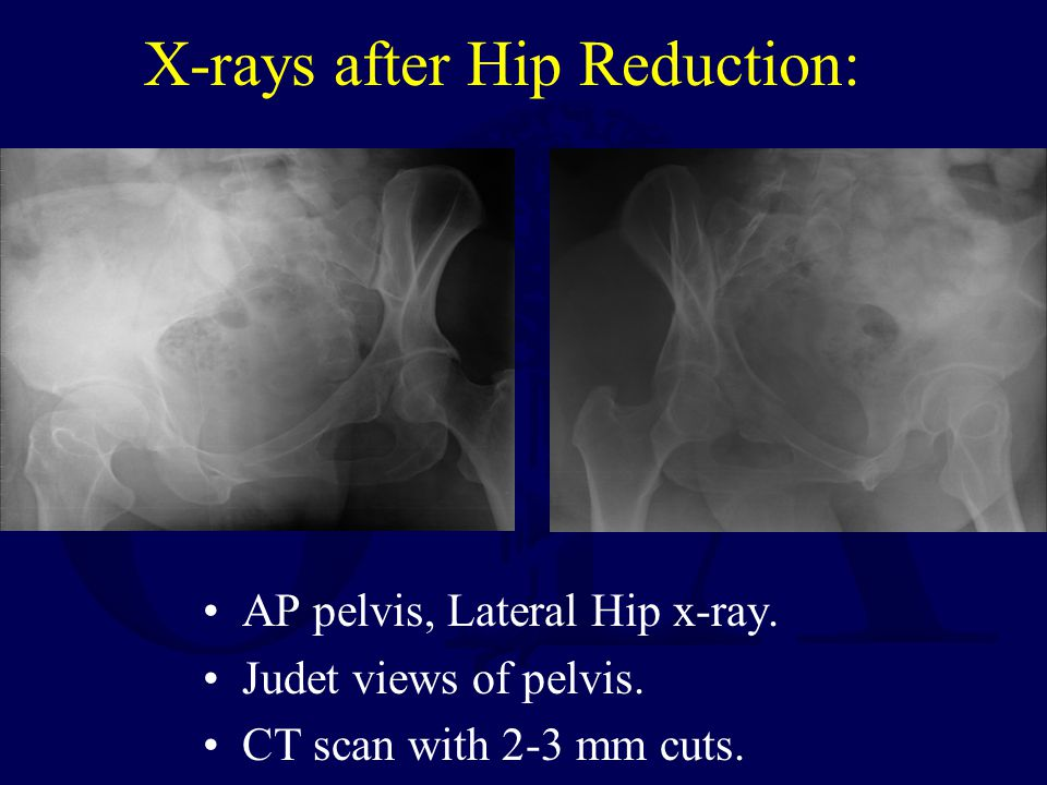 X-rays after Hip Reduction: AP pelvis, Lateral Hip x-ray. Judet views of pelvis. CT scan with 2-3 mm cuts.