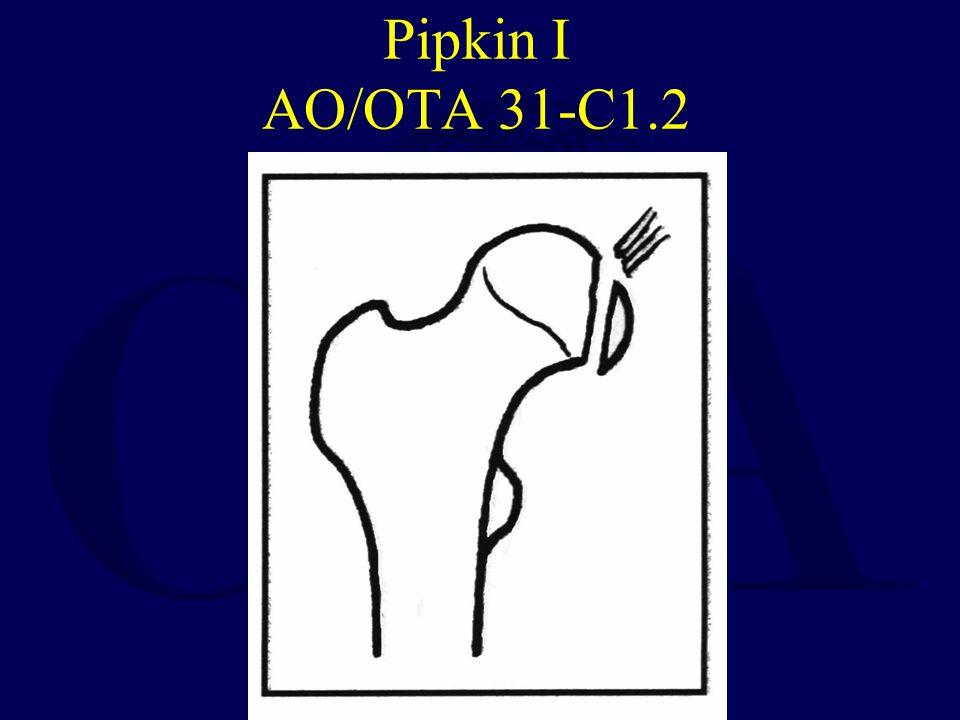 Pipkin II AO/OTA 31-C1.3