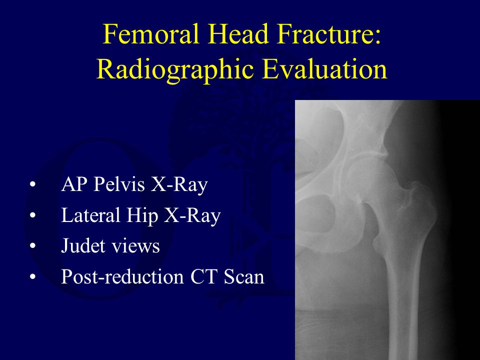 Femoral Head Fracture: Radiographic Evaluation AP Pelvis X-Ray Lateral Hip X-Ray Judet views Post-reduction CT Scan