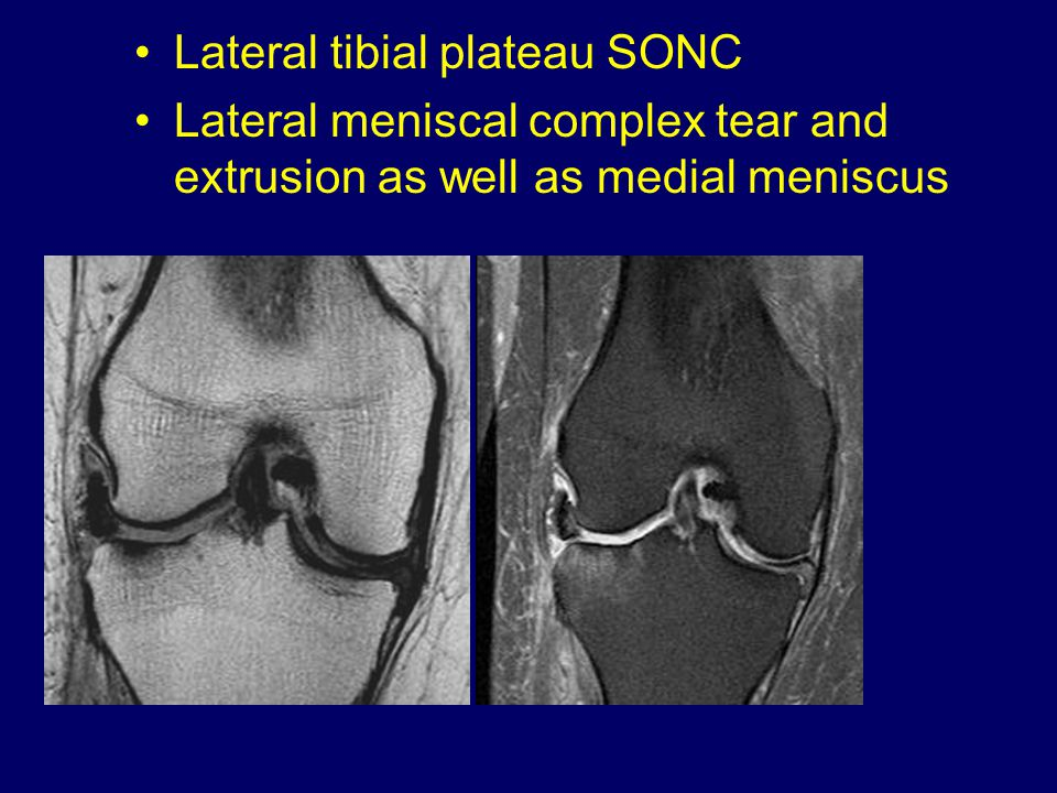Lateral tibial plateau SONC Lateral meniscal complex tear and extrusion as well as medial meniscus