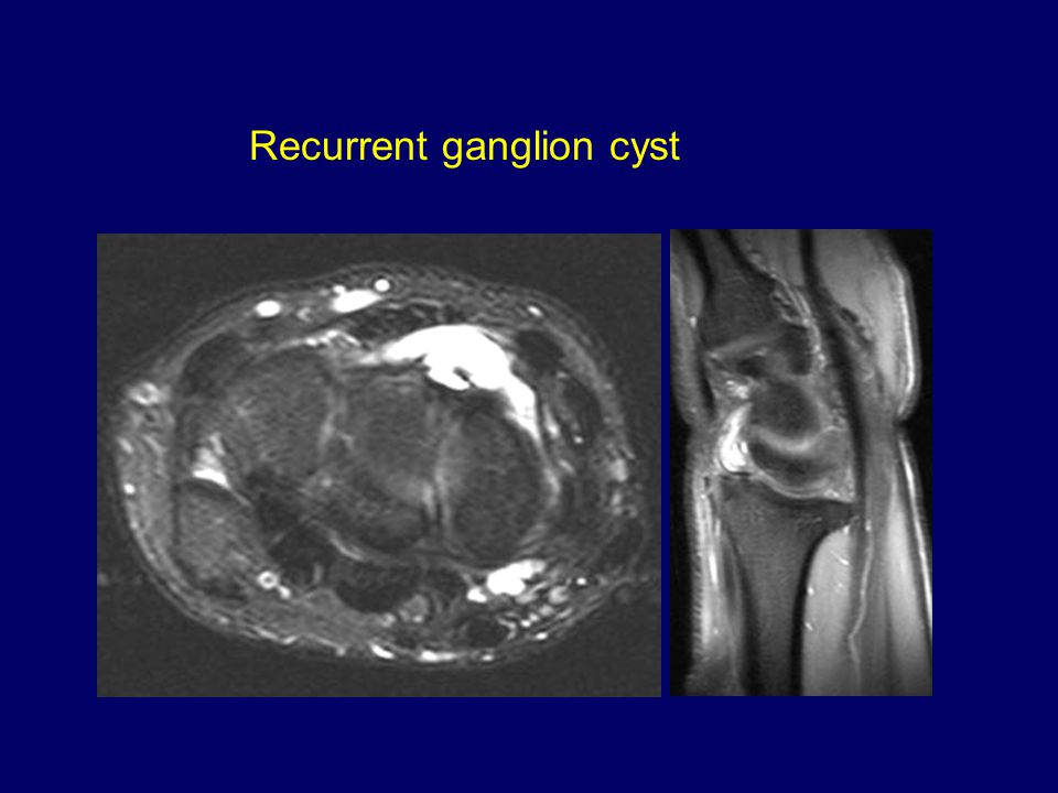Recurrent ganglion cyst