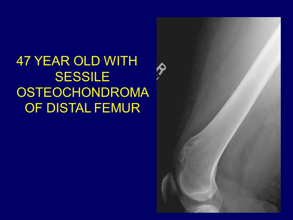 47 YEAR OLD WITH SESSILE OSTEOCHONDROMA OF DISTAL FEMUR