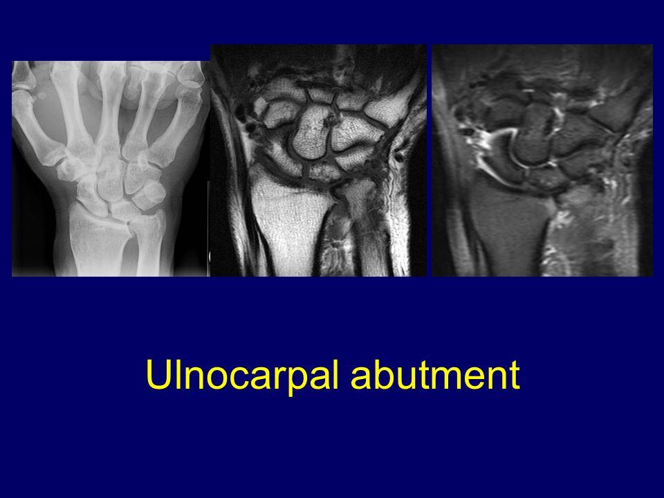 Ulnocarpal abutment