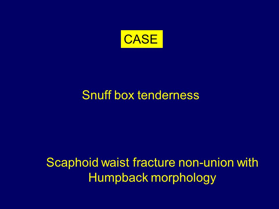 Snuff box tenderness Scaphoid waist fracture non-union with Humpback morphology CASE